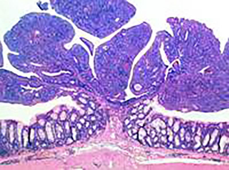 Krebs – In Zukunft massgeschneiderte Therapien?