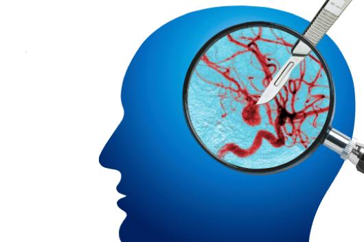 Neurochirurgie: Höchste Präzision durch innovative Technologie