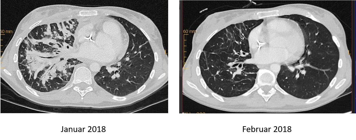 Echter Erfolg in der Krebstherapie oder wieder nur ein Medien-Hype?